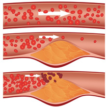 Dangers of Fat in Your Blood Vessels …